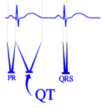 QT-interval-small.jpg